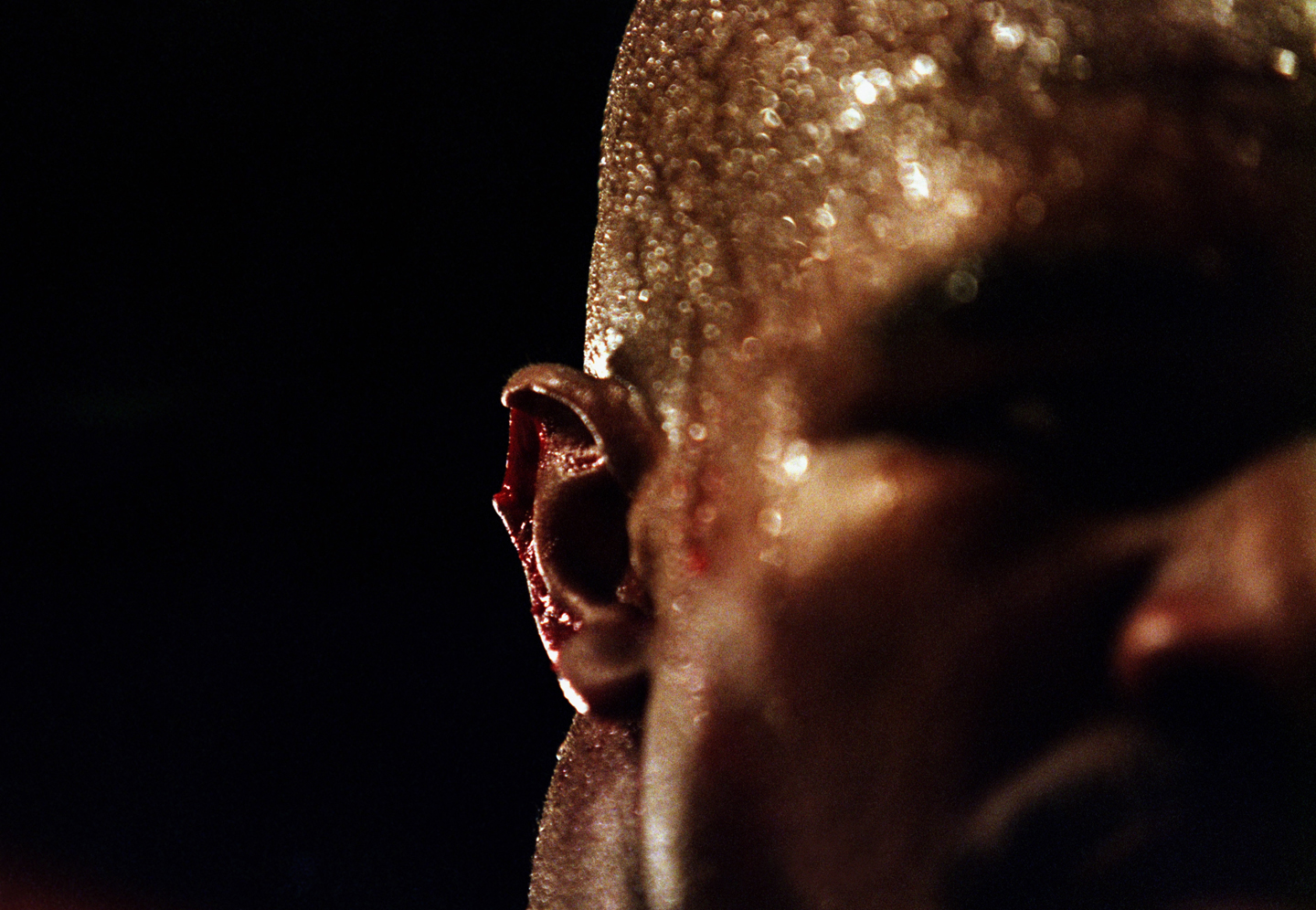 A close-up of the injury to the right ear of Evander Holyfield of the USA after Mike Tyson Of the USA bit off a piece of it in the third round of their World Heavweight title fight on June 28, 1997 at the MGM Grand Garden in Las Vegas, Nevada, USA.