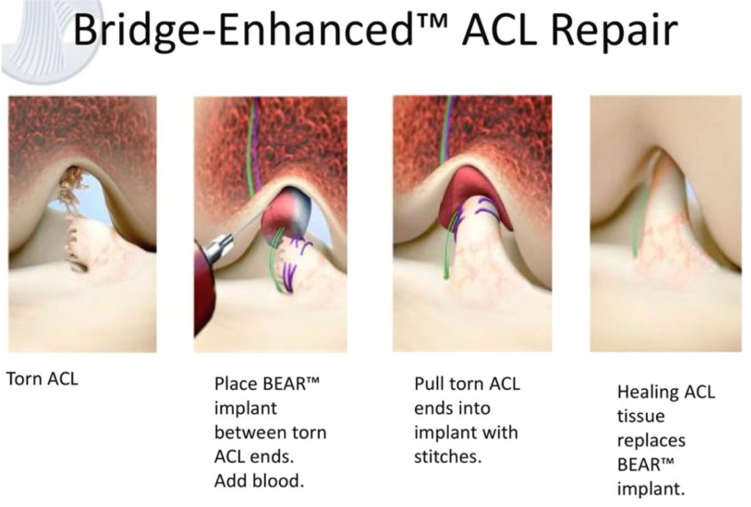 c8a7e09274f New ACL surgery could cut rehab and recovery time in half