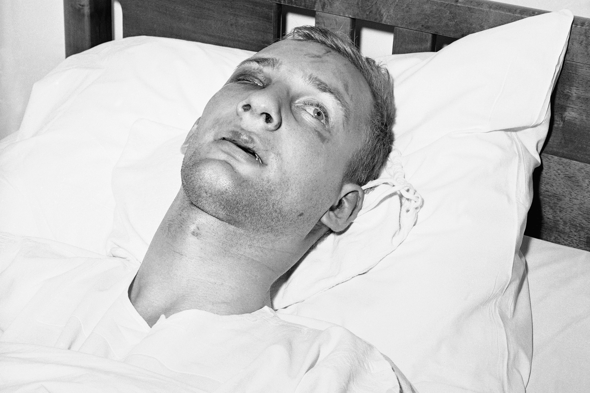 "Jim Zwerg, a ""freedom rider"" recuperates in hospital on May 21, 1961 in Montgomery, Ala. after he was beaten by a mob at the bus station yesterday. Zwerg, 21 years old ministerial student, suffered cuts and bruises and lost several teeth in the attack."